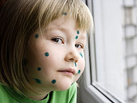 Chickenpox, the first signs of the disease