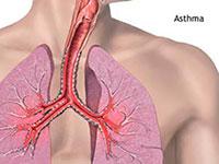 Der Auswurf bei Asthma bronchiale povlyaletsya nach längerer Krankheit während