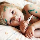 Chickenpox symptoms and treatment of the most common childhood infection