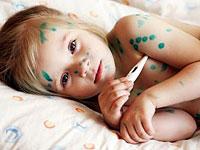 Vannkopper symptomer og behandling av de vanligste barndommen infeksjon