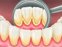 hur får man bort tandsten