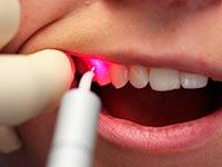 Jak stomatologiczną kamień czyszczenia ultradźwiękowego u dentysty