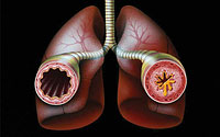 Farlig sykdom - astma
