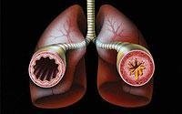 Опасна болест - астма