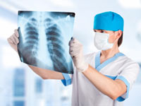 ropień płuca: diagnostyka i leczenie