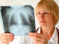 Informacja o klinice ropień płuca