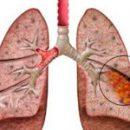 лунг апсцес слике из живота респираторног система