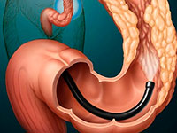 Expansion of the anus in the treatment of chronic anal fissure