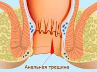 fisura anal durante el embarazo