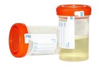 O exame de urina
