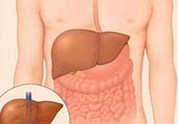 difundir alterações hepáticas