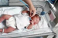 Levercirrhose hos barn