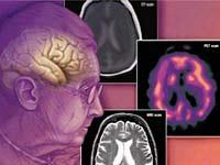 Етиологията на деменция: общата систематизация