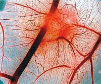 Карактеристике узимање лекова за побољшање мождане циркулације