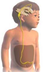 El tratamiento de la hidrocefalia en niños