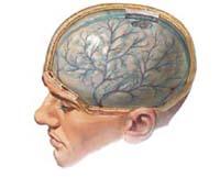 Rodzaje zapalenia opon mózgowych i ich leczenie