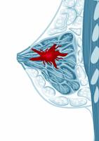 Brusttumoren beängstigende Diagnose