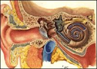 три облика отосклерозе