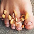 onychomycosis who is to blame and what to do