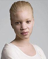 viviendo con albinismo, o el más encantador y atractivo