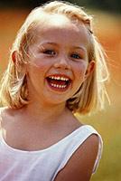 гингивитис код деце