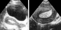 Variantes de hiperplasia endometrial