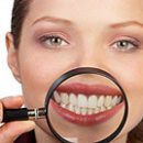 Hollywood Smile Teeth Whitening