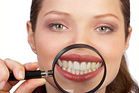 Hollywood sorriso Teeth Whitening