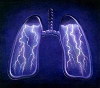 """Boala legionarilor"": diagnostic și tratament"