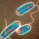 Legionárska alebo zákerný baktérie