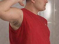 la chirurgie pour l'hyperhidrose
