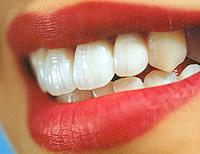 O que é a periodontite