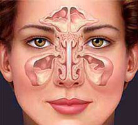 treatment and prevention of sinusitis