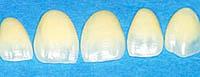 ¿Cuáles son las carillas dentales