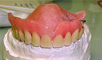The modern view of dentures
