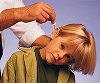Acute etterige otitis media. Behandeling voor otitis