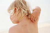 Rozpoznanie i leczenie atopowego zapalenia skóry