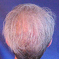 Diffuse alopecia. What it is