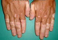 mysterious disease vitiligo