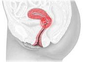 cervical erosjon
