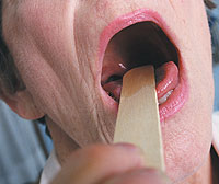 Chronic tonsillitis - treatment without removal of the tonsils