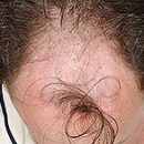androgenic alopeetsiya study more