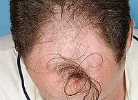 androgene alopeetsiya studie mer
