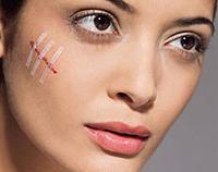 cicatrices et comment les éviter