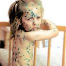 chickenpox go away nasty