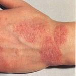 Juntamente com eczema