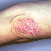 ¿Qué es la psoriasis y podemos tratarla?