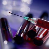 Sepsis: symptomer og behandling