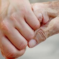 четка контрактура руке пре и после операције