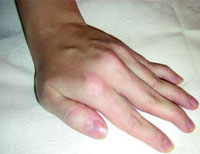 What is fraught with contracture